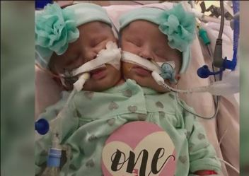 nc-conjoined-twins_522978