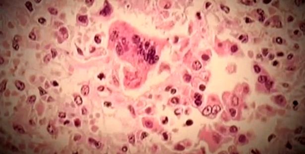 measles_1536585524166.PNG