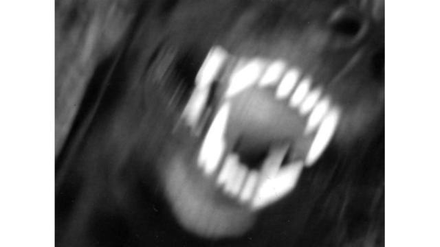 dog-attack_1521628759080_37888886_ver1.0_640_360_1553525680100.jpg