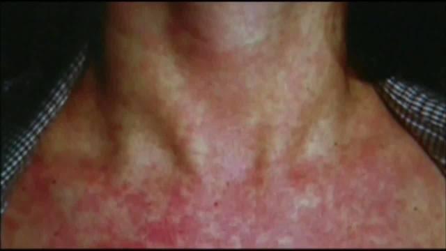 Measles_cases_up_in_California__spread_b_1_84358974_ver1.0_640_360_1556570869099.jpg